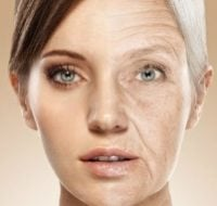 Старение кожи. Причины и признаки старения кожи
