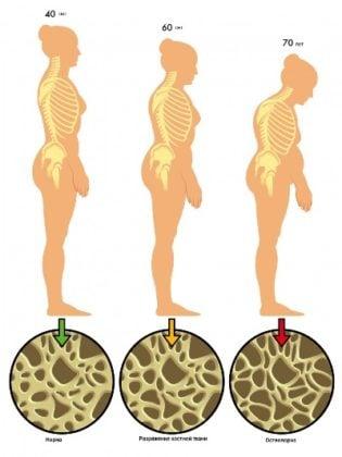 Остеопороз - заболевание «переломного» возраста. Как избежать остеопороза.