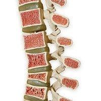 Остеопороз - заболевание «переломного» возраста. Как избежать остеопороза. Советы