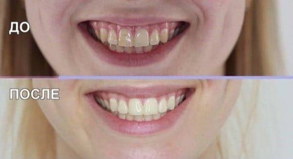 Пятна на зубах, причины. Как их удалить
