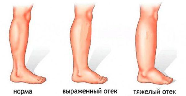 otechnost-nog